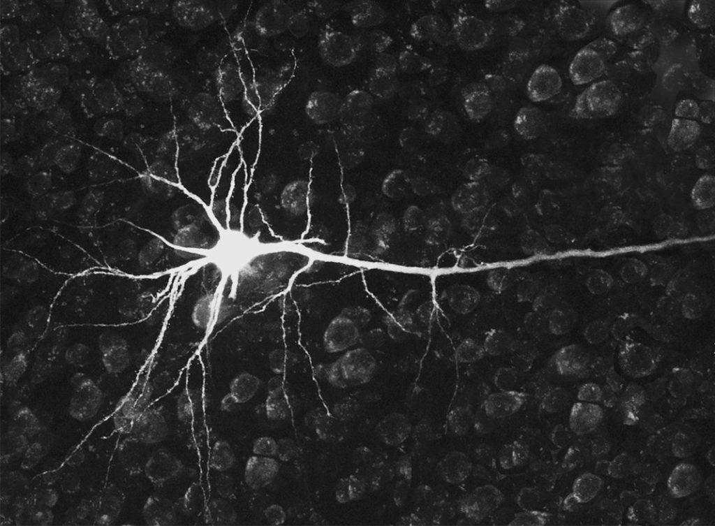 neurone cerveau mémoire mind map